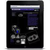 Die à la Apple gestylte Oberfläche von RadSpeech: Für Radiologen ein neues Dialogsystem für ihre Arbeit mit den Patienten.